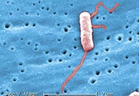 Legionella Bacteria with Flagella