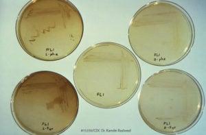 Legionella Pneumophila Testing